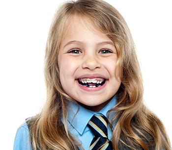 Zahnspange für Kinder am Sommer 2015 gratis